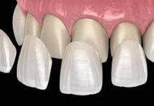 Dental Veneers vs Dental Implants