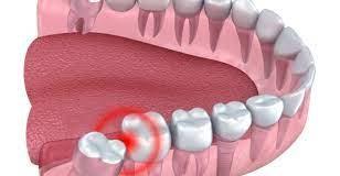 wisdom teeth removal risks
