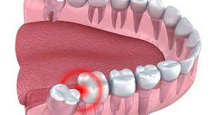 What Are Some Unknown Risks Of Removing Your Wisdom Teeth