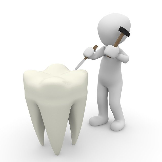 3 Most Common Misconceptions About Dentures